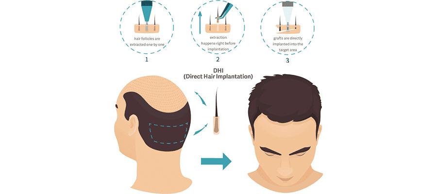 dhı техника трансплантации волос