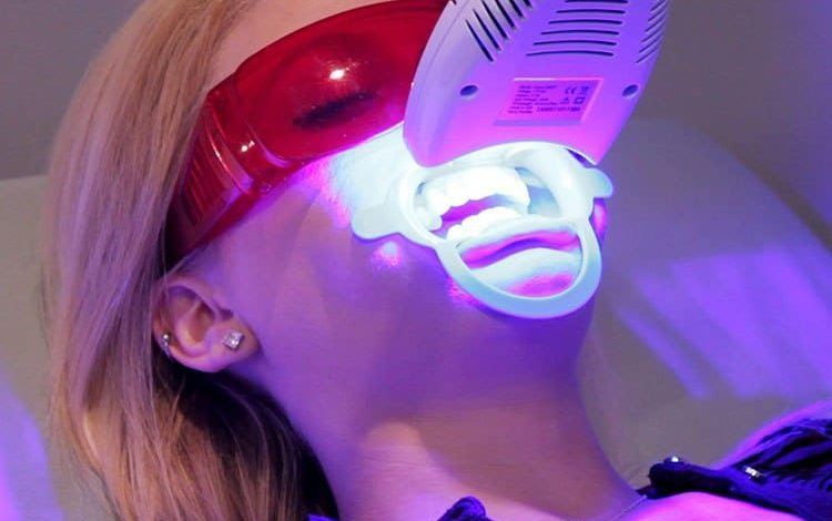 Photo of Отбеливание зубов