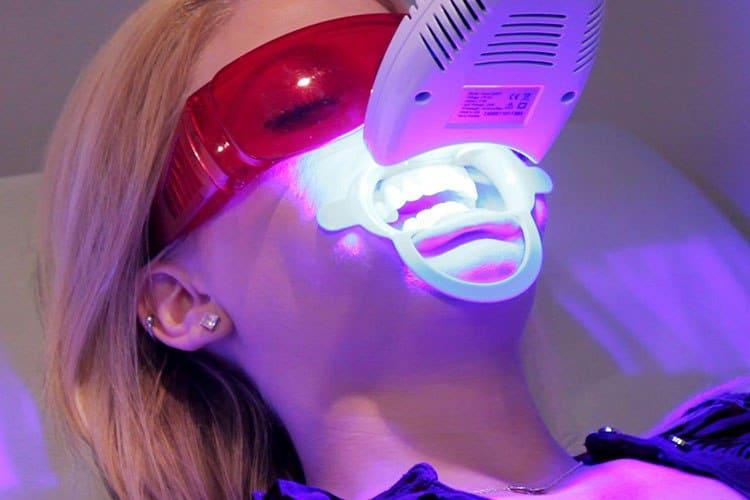 Отбеливание зубов Турция
