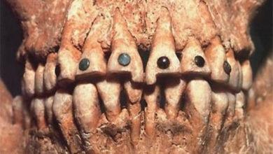Photo of Украшение зубов