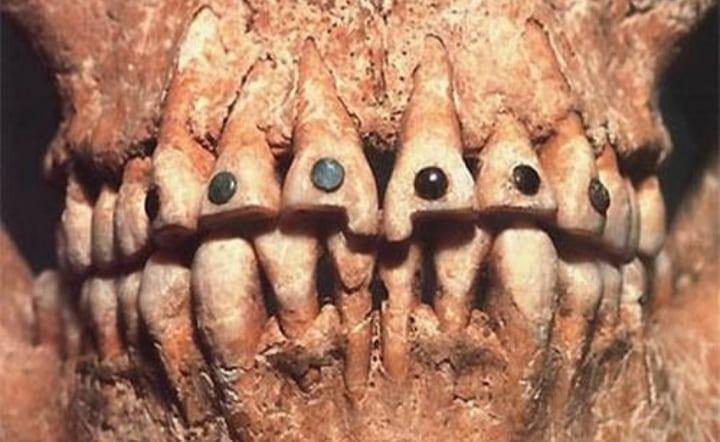Скайсы украшение зубов