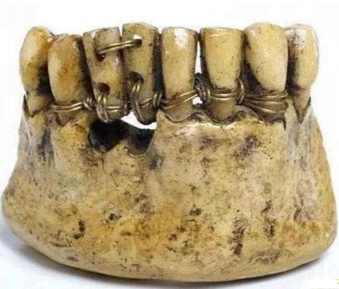 Стоматологи этруски