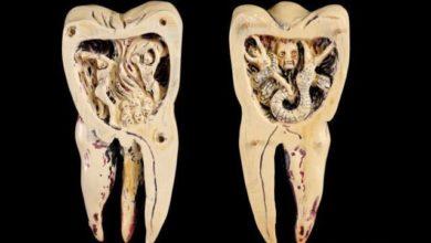 Photo of Как привлечь внимание к здоровью зубов