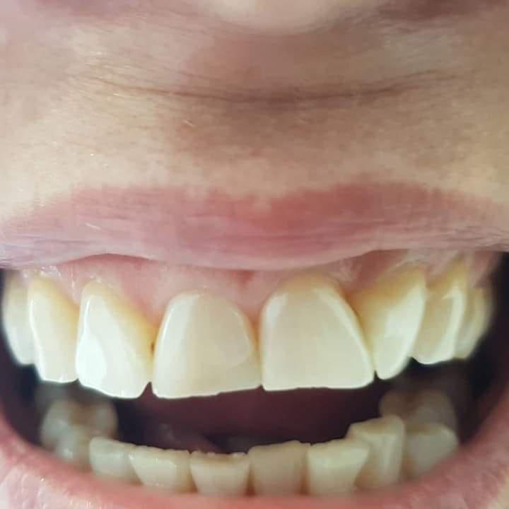Эстетика коронок на зубы