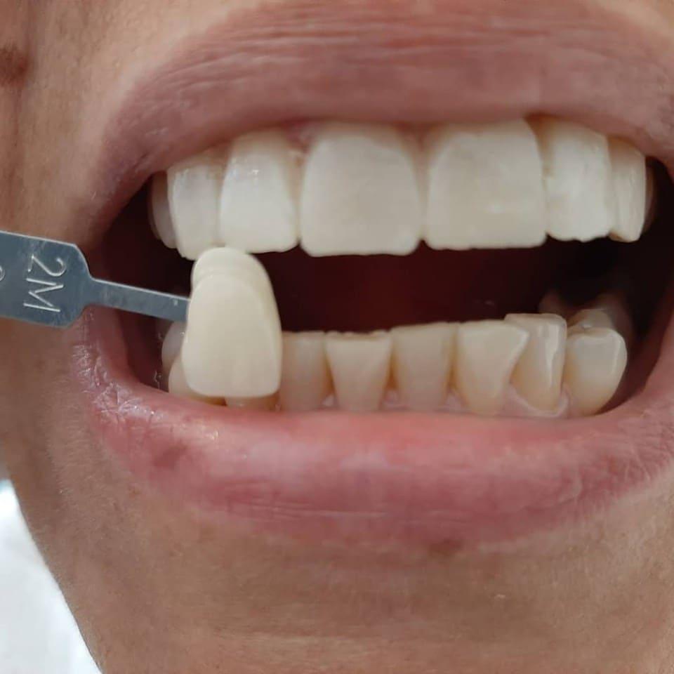 Подбор цвета коронки на зуб