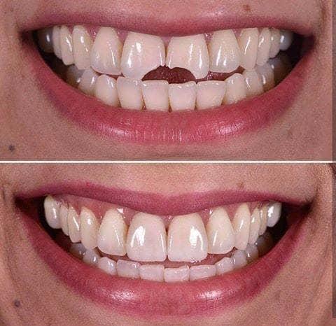 Стоматологичекая коронка