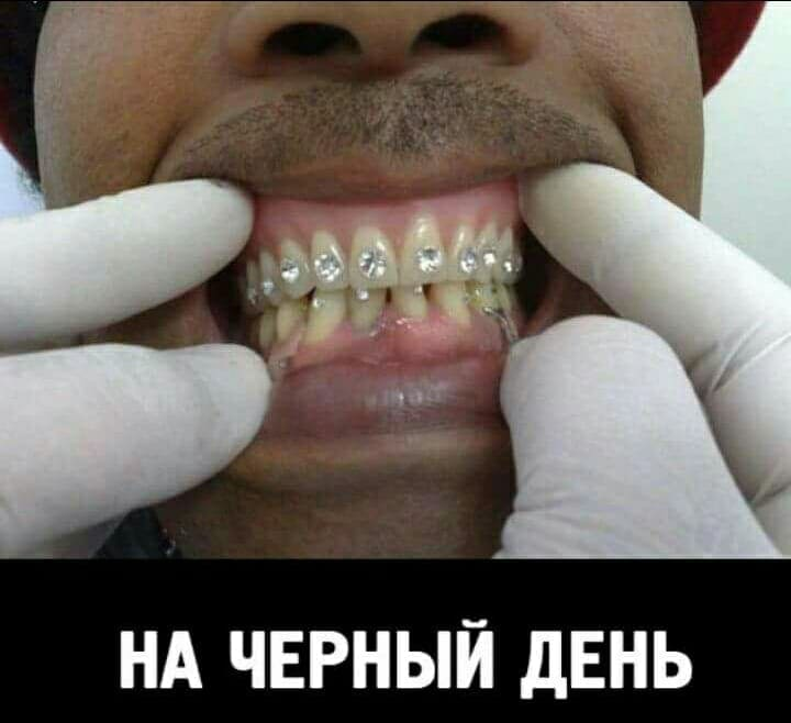 Украшение зубов бриллиантами