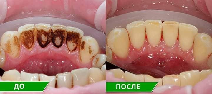 Photo of Профессиональная чистка зубов